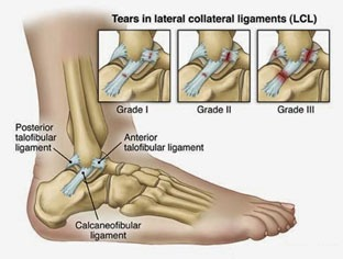 Ankle and Foot Pain 6