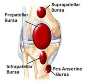 Bursitis around Knee