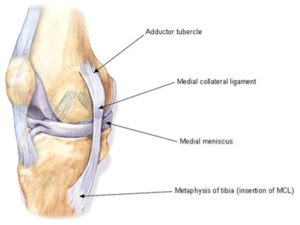 Medial Collateral
