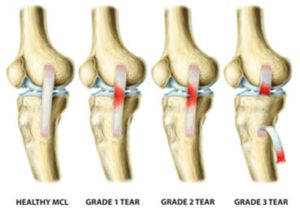 Medial Collateral2