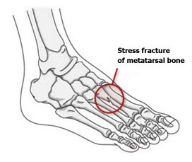 Stress Fracture1