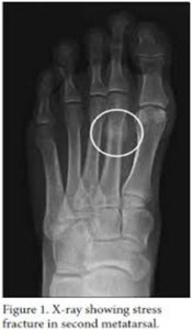 Stress Fracture2