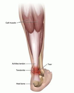 Achilles Tendonitis Rupture